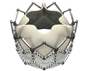 Sapien valve: projected 2010 sales of about $200 million
