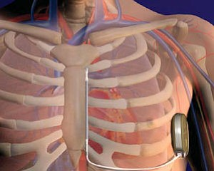 Cameron defibrillator: links to heart, no lead wires