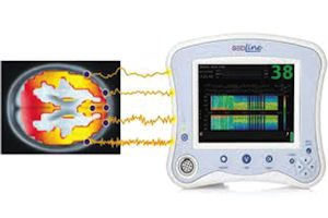 SedLine: checks both sides of brain for effects of anesthesia and sedation