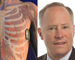 S-ICD: FDA decision a year off; Hykes: buyer brings global reach