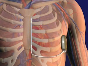 S-ICD defibrillator: implantable device shocks irregular heartbeats to return them to normal rhythm