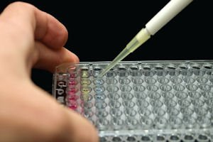 Microwell Pipette: used to test for food intolerance
