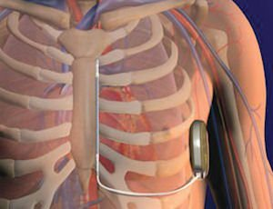 S-ICD: Boston Scientific's implantable defibrillator