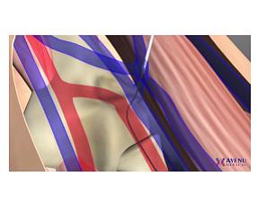 Avenu Medical animation of product