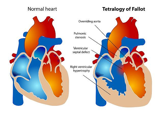Teratology of Fallot affects some 85,000 people in the U.S. Image courtesy of UC San Diego Health.