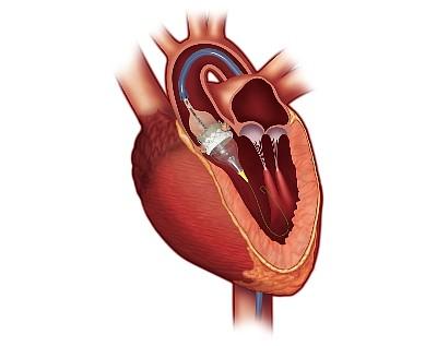 Model of Sapien 3 in Heart