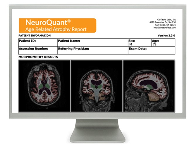 Courtesy of CorTech Labs. CorTech's labs software analyzes brain images.