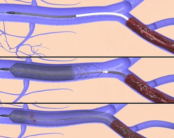 Inari ClotTriever Thrombectomy System