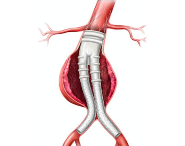 Alto stent graft in the middle of a global launch