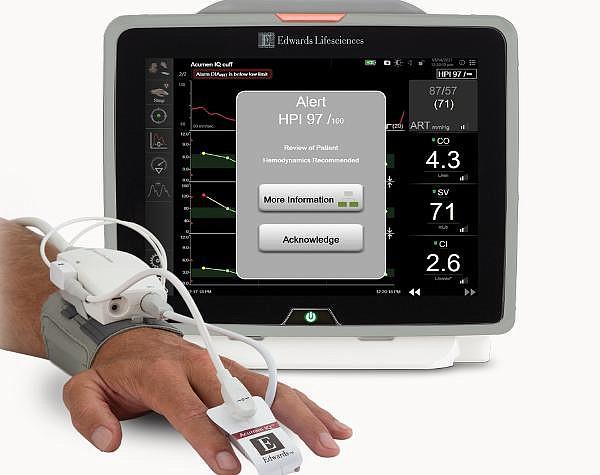Acumen IQ Finger Cuff enables noninvasive blood pressure monitoring