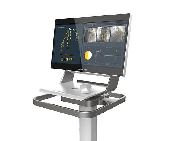 The FFRangio System uses AI to create 3D models of each patient's coronary system