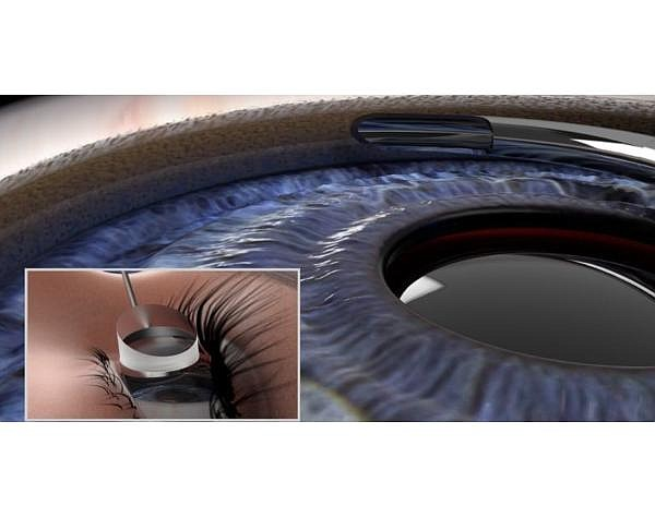 Ivantis' Hydrus Microstent is a device the size of an eyelash designed to relieve pressure and restore fluid flow in patients with glaucoma